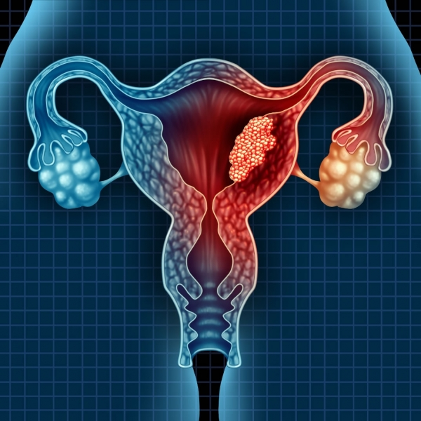 Adenocarcinoma endometriale