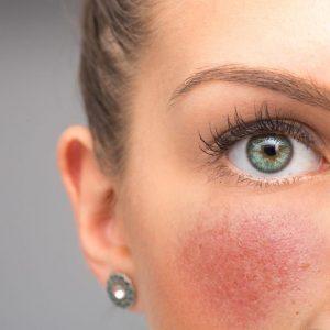 Dermatite