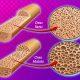Osteolisi e Osteoporosi