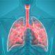 Polmonite interstiziale